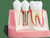 Имплантанты зубные